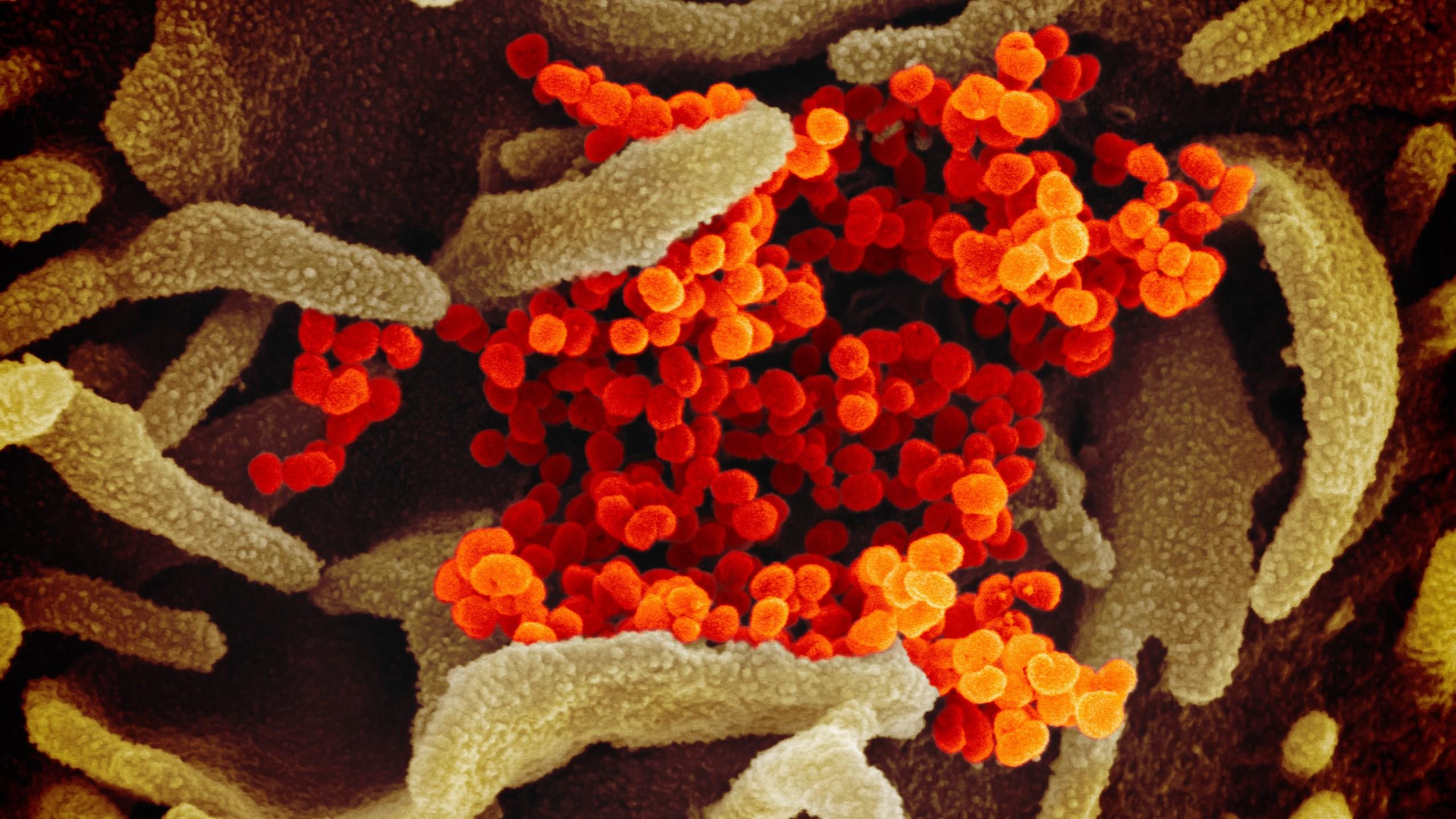 Coronavirus (NIAID-RML)