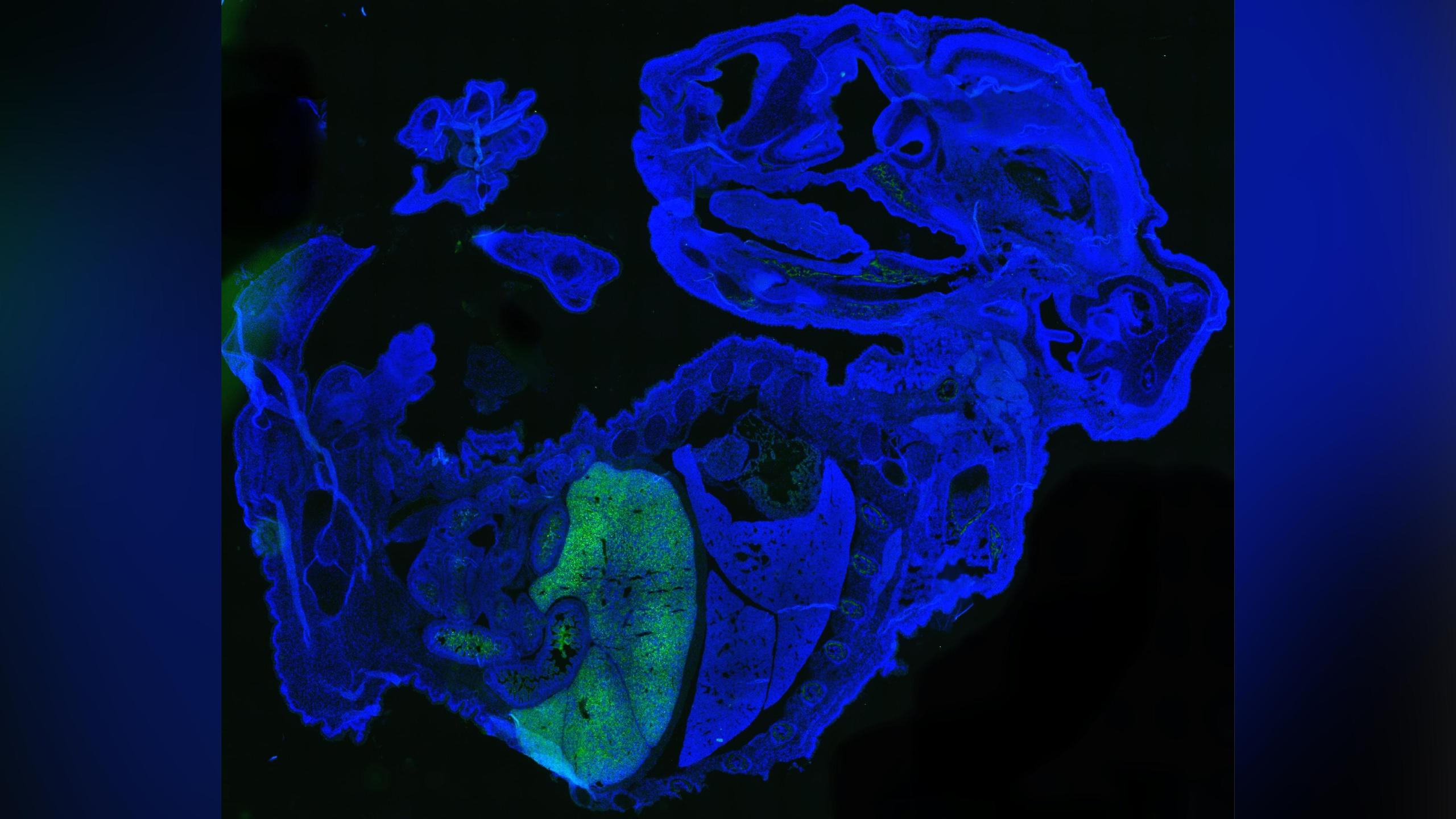 This figure shows a large quantity of human cells (labeled green) in a 17-day old mouse embryo (labeled blue). Most of the human cells are red blood cells, which are accumulated in the mouse fetal liver. Credit: Zhixing Hu/University at Buffalo