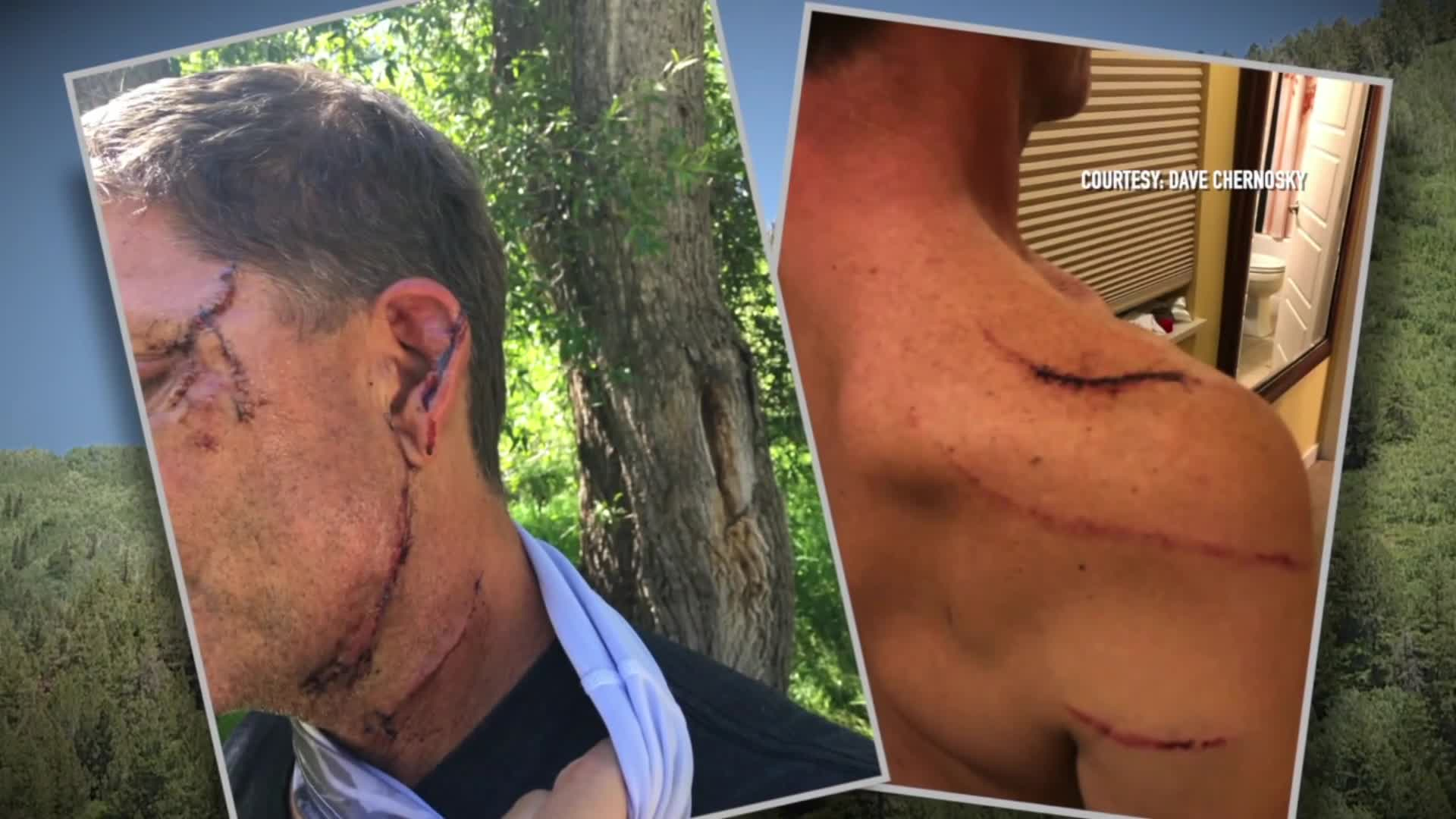 Man recounts terrifying moment he was attacked by a bear in home