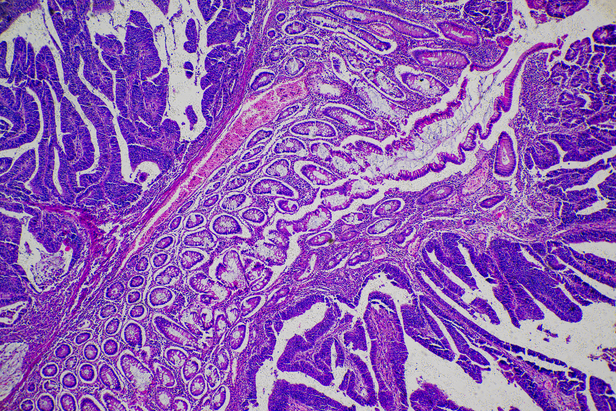 adenocarcinoma of human tumor tissue micrograph (Getty Images)