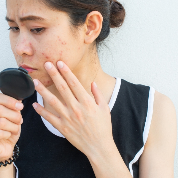 Conceptual of problems on woman skin (Getty Images)