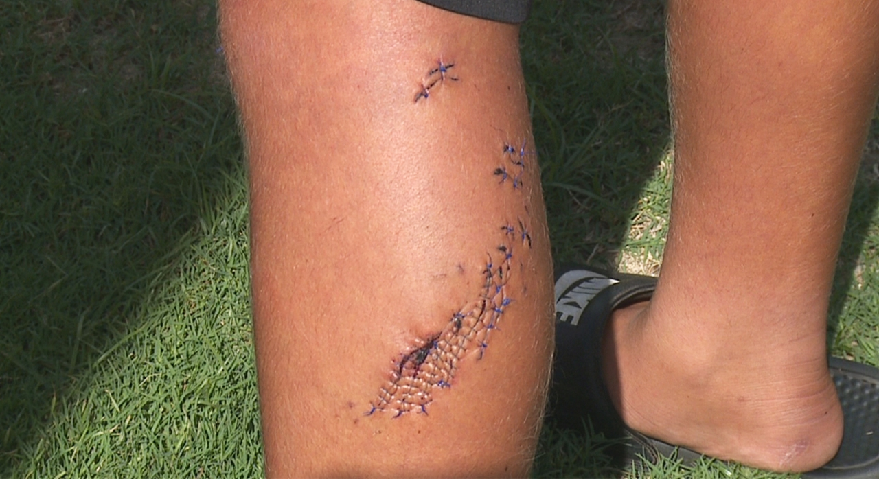 Teen surfer bitten by shark eager to return to waves despite more than 100 stitches: 'I felt pretty darn cool once I got bit'